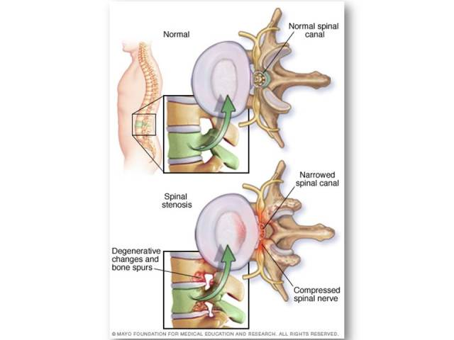 Figure 1 Spinal stenosis disebabkan penyempitan kanal spinal  [ sumber: http://www.mayoclinic.org/condition/seo/multimedia/spinal-stenosis/IMG-20006360 ]